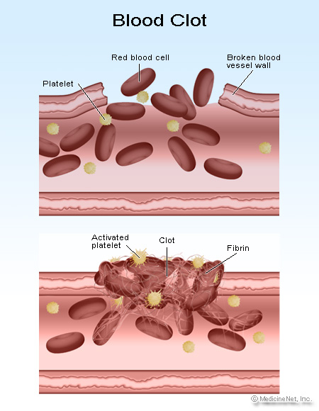 Blood Clots  Facts About Symptoms Causes   Pictures