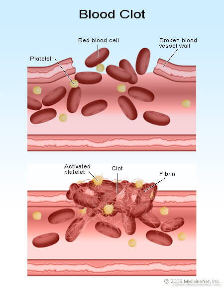 Thrombocytopenia  Symptoms And Low Platelet Count Causes