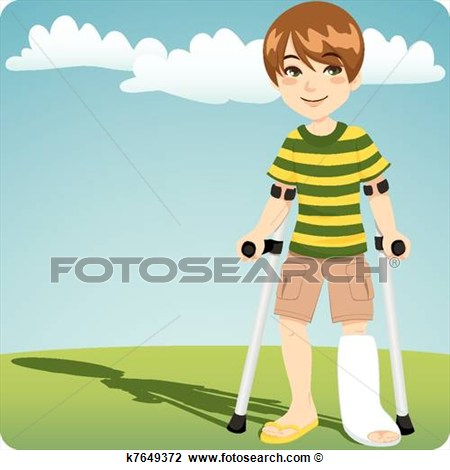 Broken Ankle View Large Clip Art Graphic