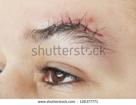 Gash Above The Eyebrow That Has Just Received 7 Stitches To Close It