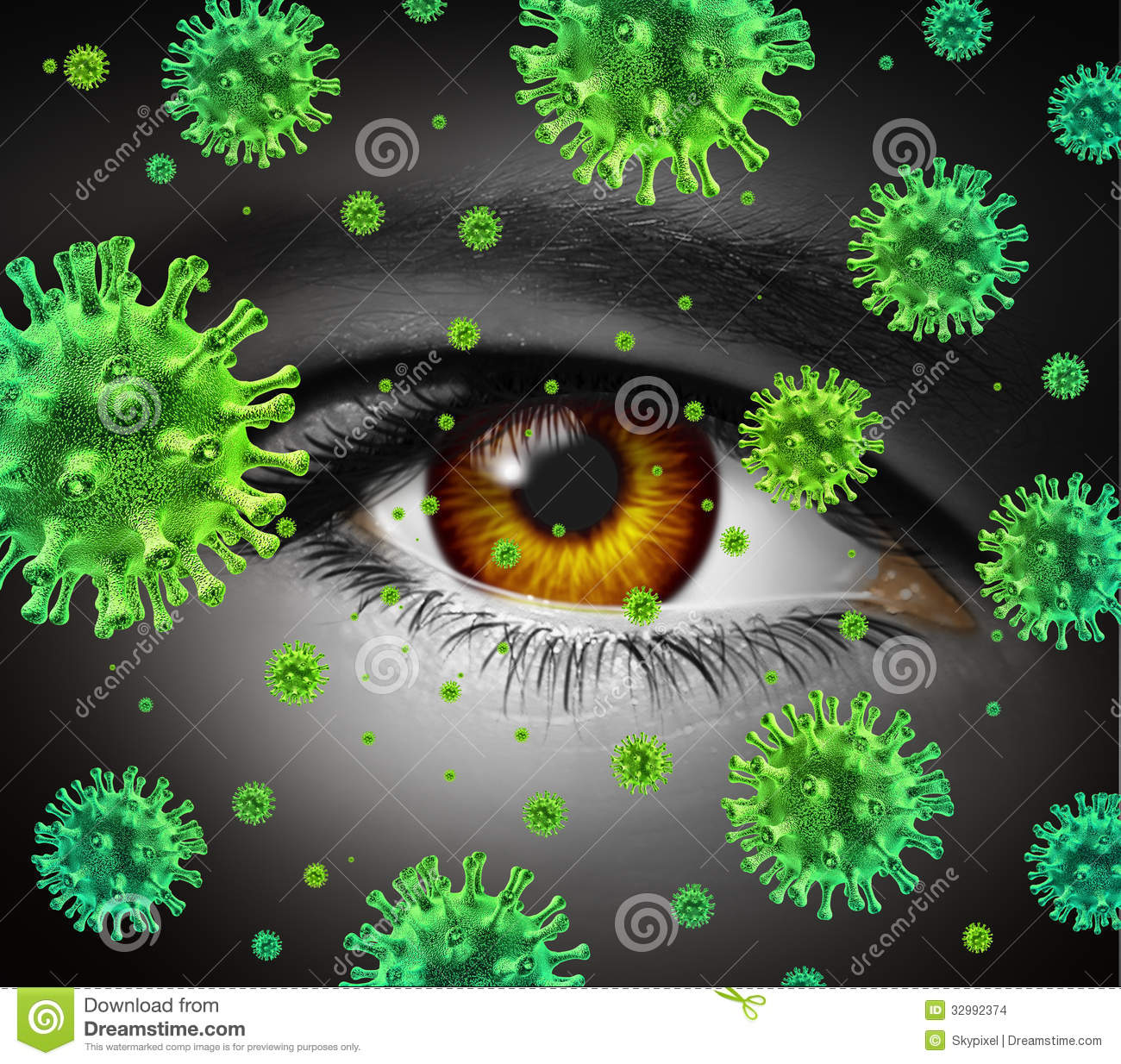 Eye Infection As A Contagious Ocular Disease Transmitting A Virus With