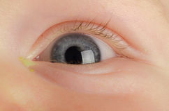 Eye Infection Stock Images   Image  32992374