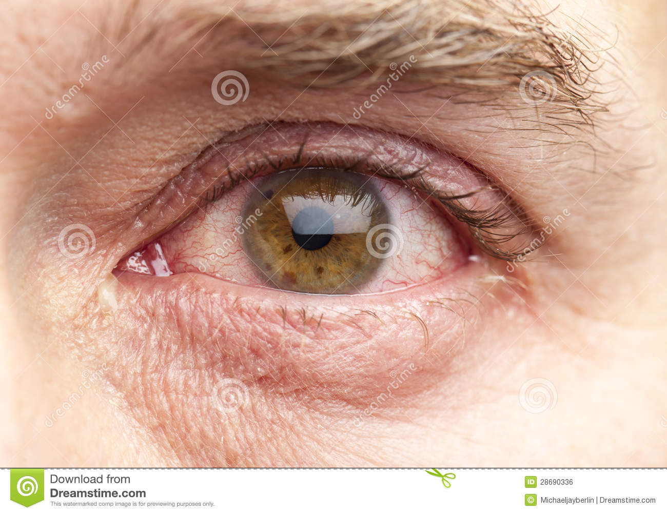 Human Eye Of A 40 Year Old Man With Brown Iris And A Slight Infection