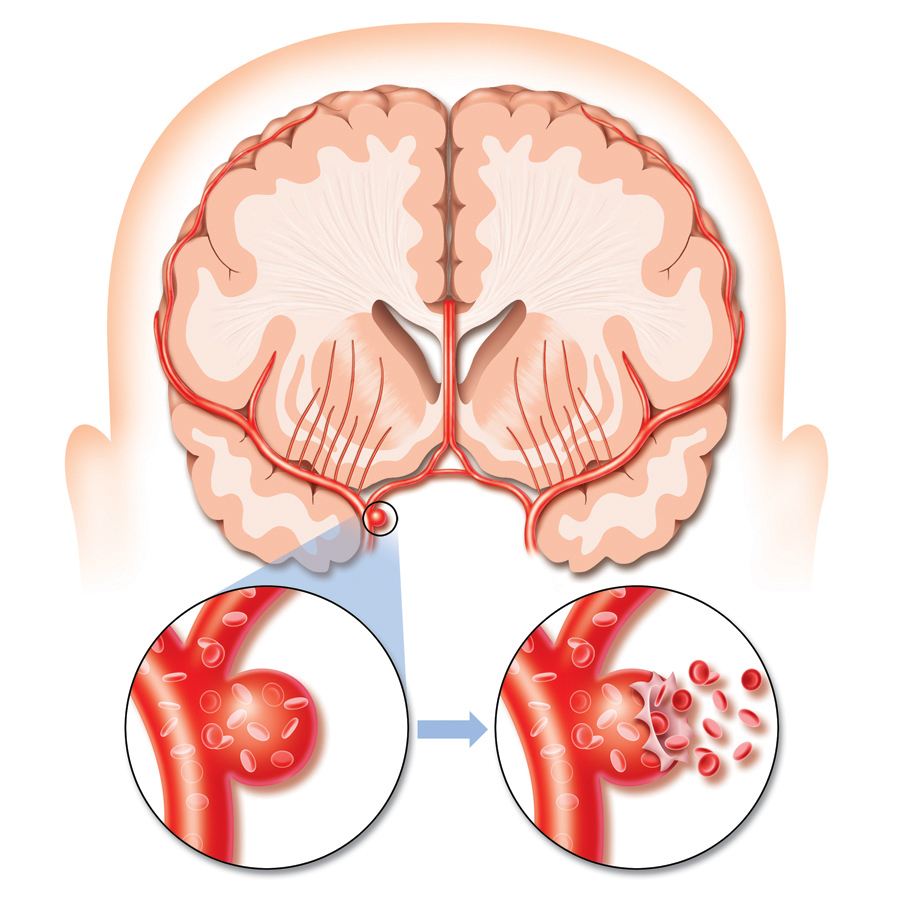 Cartoon Stroke Brain Hemorrhagic stroke clipart - clipart kid