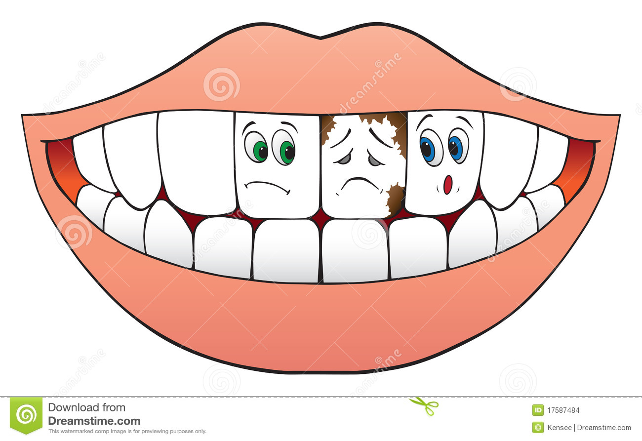 Bad Teeth Stock Vectors, Clipart and Illustrations