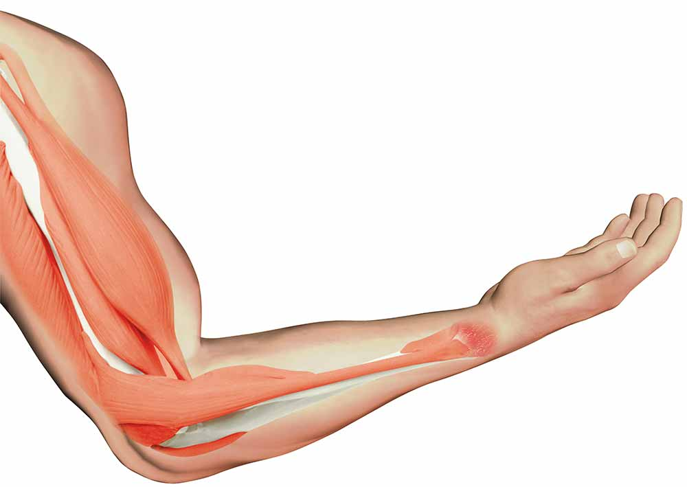 Muscle Arm Clipart - Clipart Kid