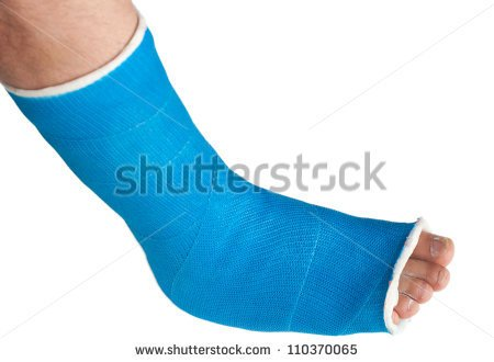 Broken Leg In A Plaster Cast Isolated On White Stock Photo Clipart