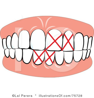 Clip Art For I Am Sorry You Lose Clipart