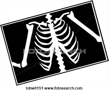 Related Pictures X Ray Clip Art