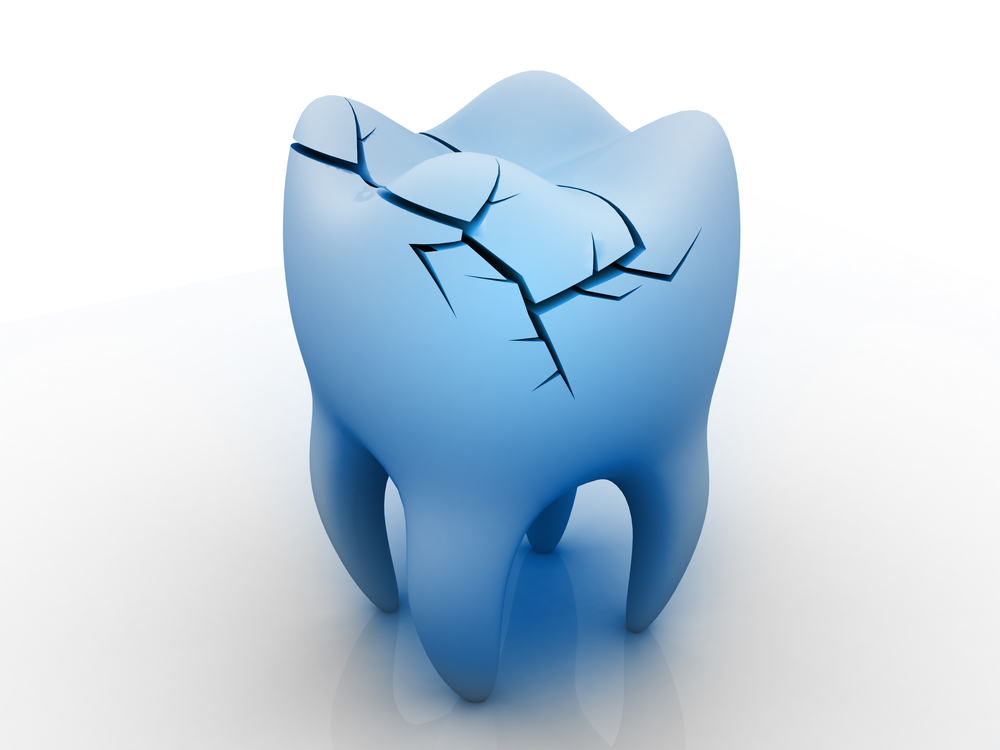 Can A Fractured Tooth Be Fixed    Kin Wong Dds