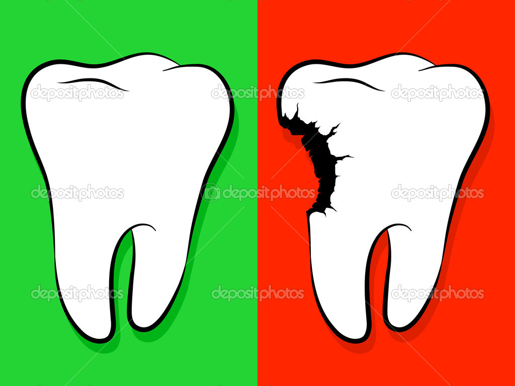Tooth Cavity Clipart   Cliparthut   Free Clipart