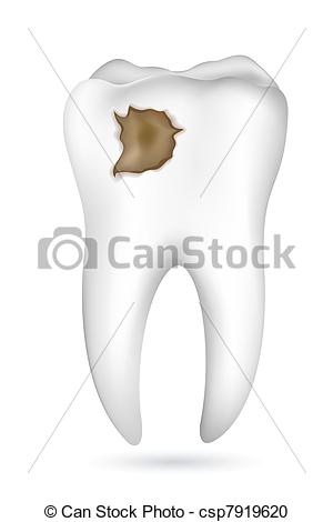 Vector Clipart Of Cavity In Tooth   Illustration Of Cavity In Tooth On
