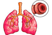 Asthma   Clipart Graphic