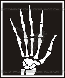 Clip Art Xray Clipart hands x ray clipart kid hand snapshot vector clipart