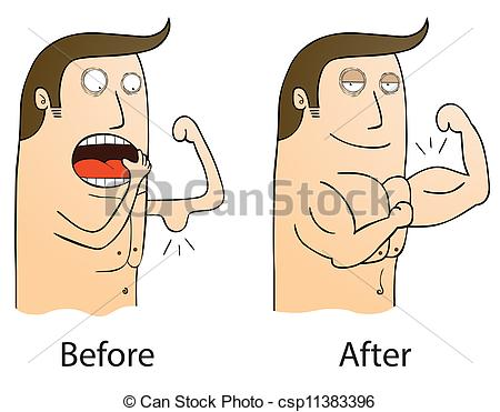 Eps Vectors Of Before And After Csp11383396   Search Clip Art