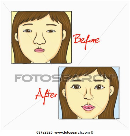 Of Before And After Plastic Surgery  Fotosearch   Search Clipart