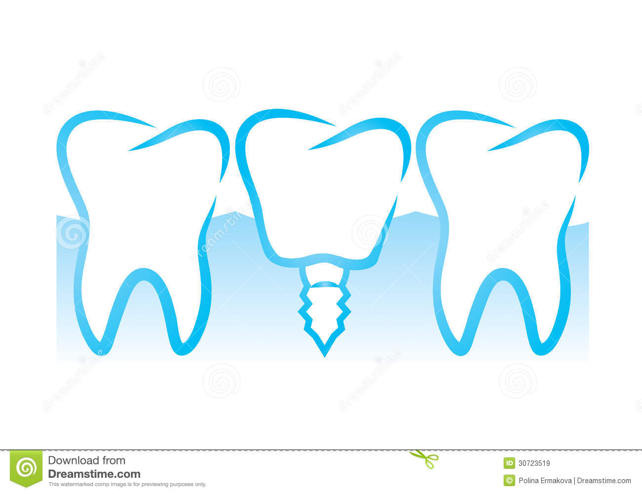 Dental Implant Royalty Free Stock Images   Image  30723519