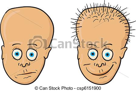 Clipart Of Vector Illustration   Patient With A Bald Head And Hair
