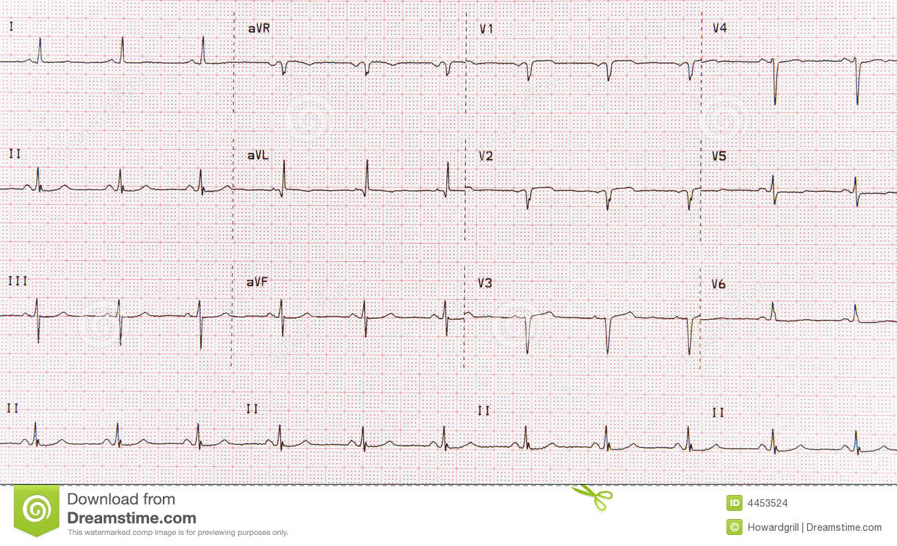 12 Lead Electrocardiogram Or Ekg Showing The Patients Heart Rhythm