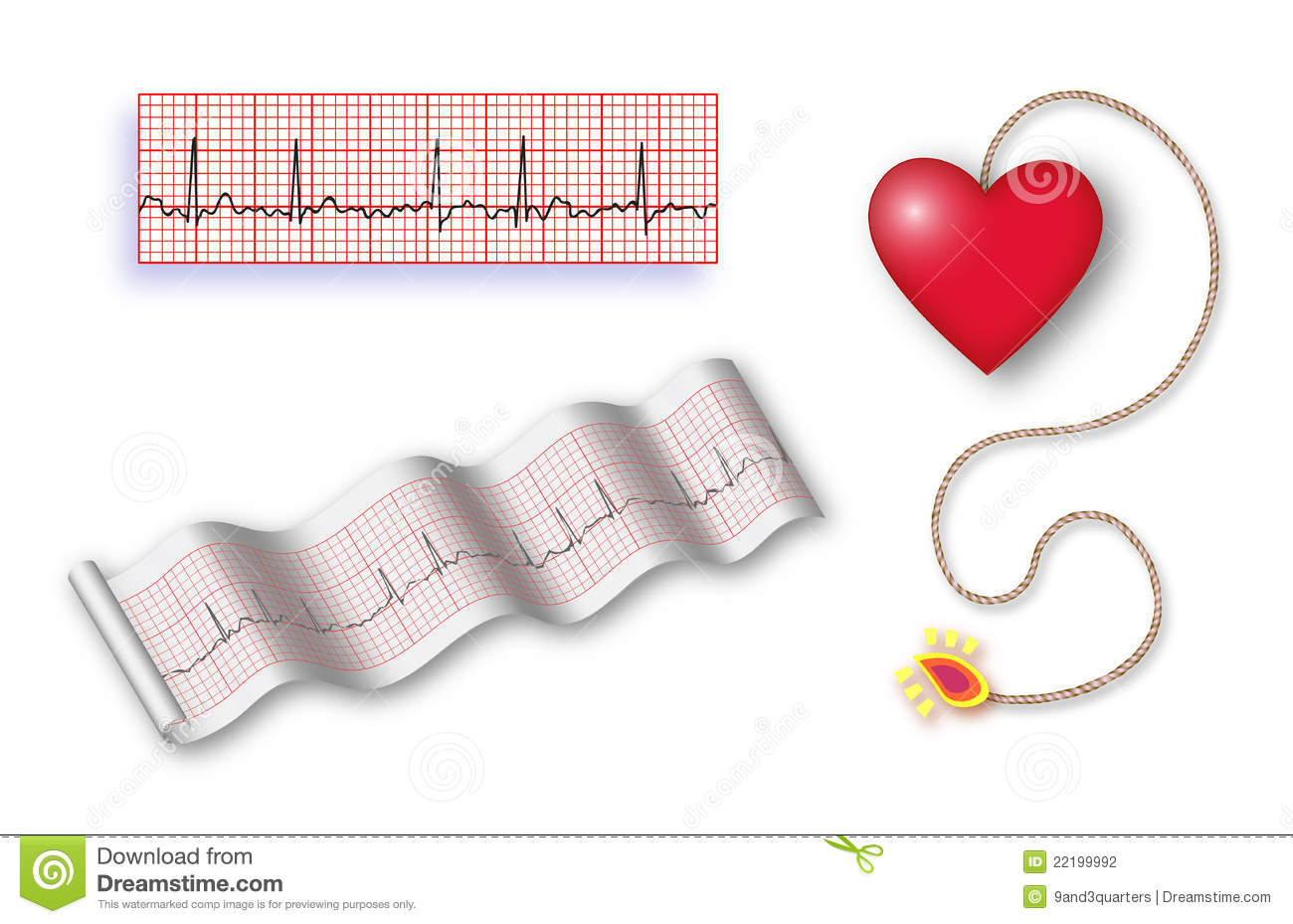 Det Cord 2 Ekg Strips Stock Photography A Third Plain Ekg Strip To