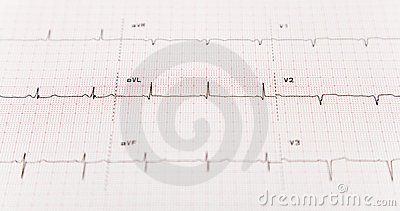 Ekg With Selective Focus Royalty Free Stock Images   Image  4454849