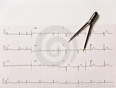 Electrocardiogram Or Ekg With Calipers Stock Photos   Image  4599023