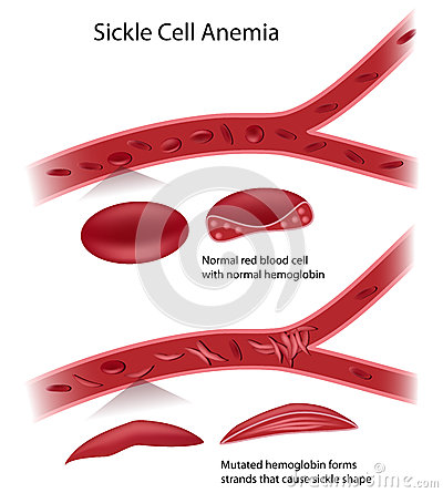Cell Shape And Blockage Of Blood Flow In Sickle Cell Anemia Eps10