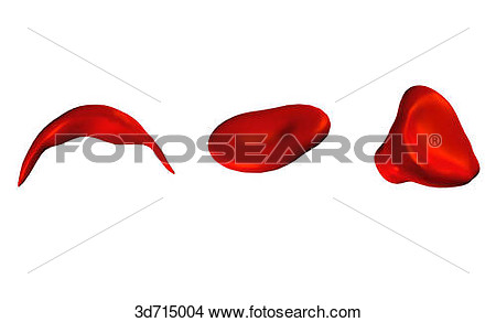 Drawing   Red Blood Cells Of Irregular Shape  Drepanocyte  Sickle Cell