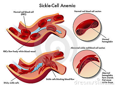 Sickle Cell Anemia Royalty Free Stock Images   Image  23933699