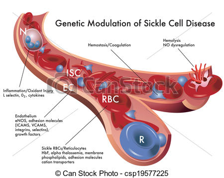 Sickle Cell Disease   Csp19577225
