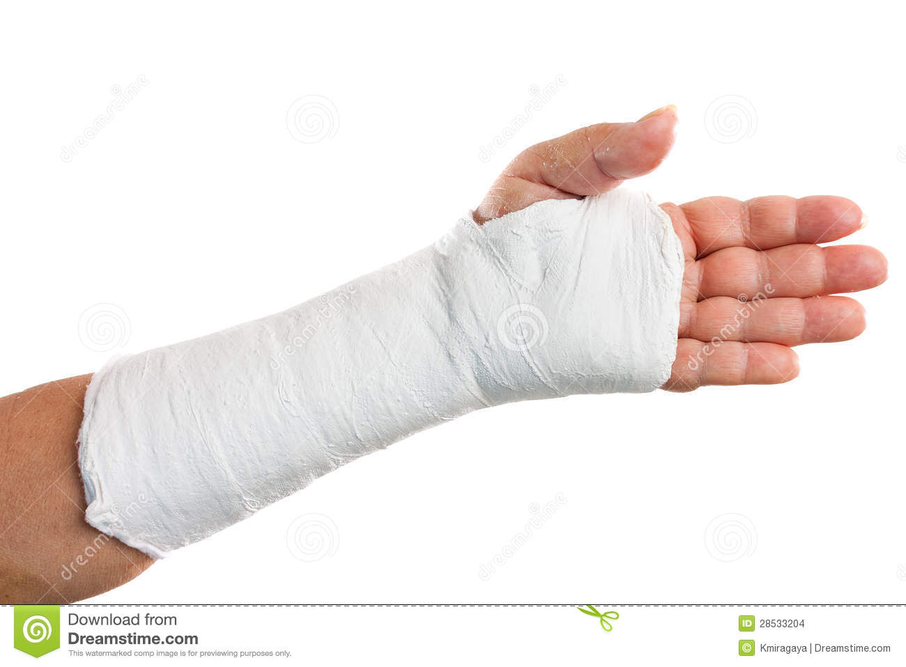 Broken Arm With A Plaster Cast Stock Images   Image  28533204