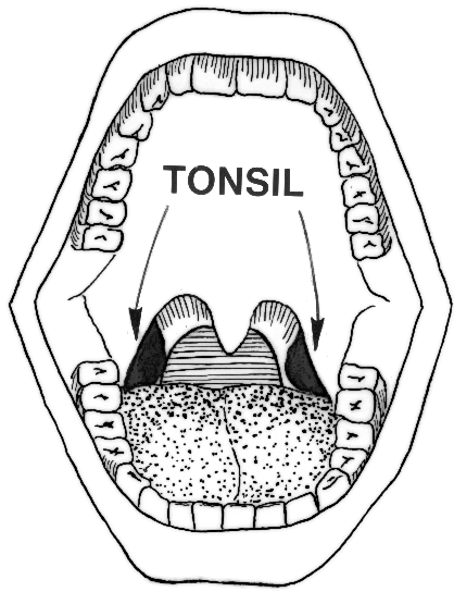 Www Wpclipart Com Medical Anatomy Mouth And Throat Tonsil Png Html