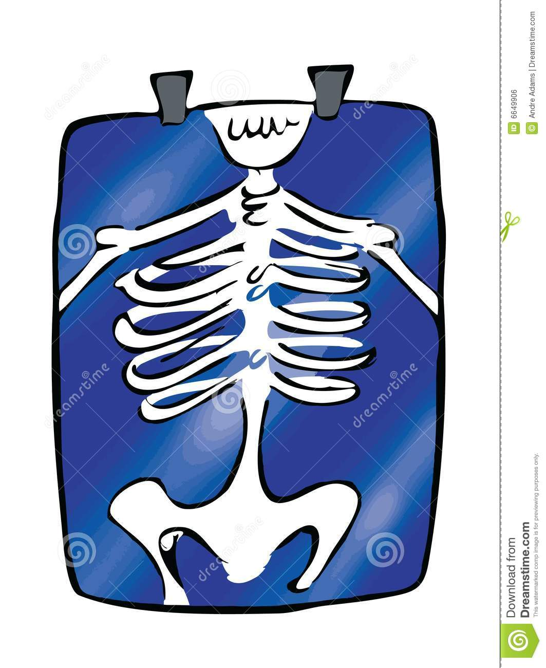 x ray clipart free - photo #20
