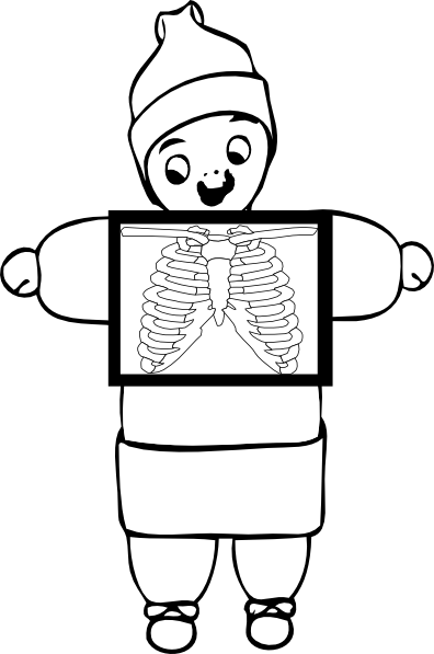 X-ray Black And White Clipart - Clipart Suggest