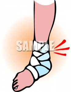 Cast On A Broken Ankle   Royalty Free Clipart Picture