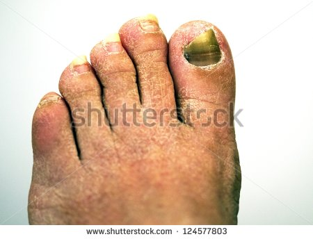 Closeup Of A Foot With Arthritis Damaged Nails Because Of Fungus And