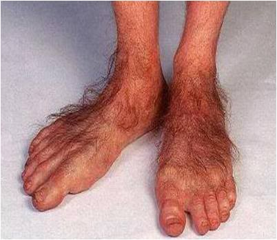 What Are Your Hobbit Feet Telling You    Lexington Podiatry