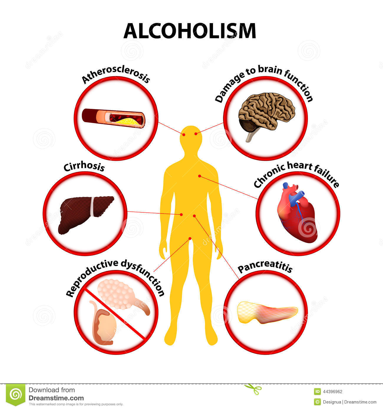 negative effects of alcohol problem Women and alcohol the hidden risks of than men to alcohol's effects from their first drink to their first alcohol-related problem to the need for treatment.