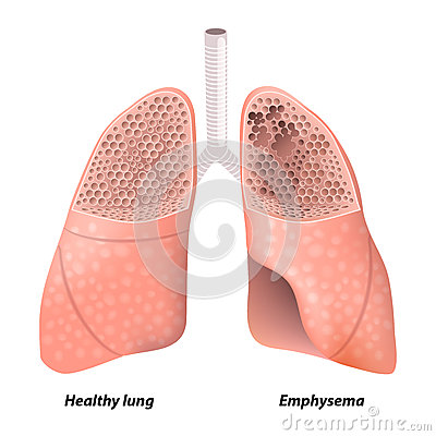 Copd Cartoons Copd Pictures Illustrations And Vector Stock Images