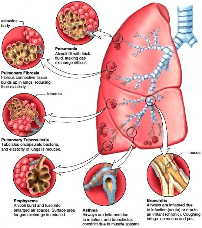 Description Asthma And Copd Chronic Obstructive Pulmonary Disease Are