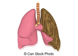 Lung Illness  Health Care Concept Stock Illustration