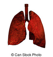 Lungs Od Smokers   Human Lungs And Bronchi In X Ray View