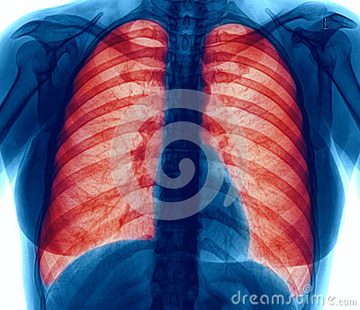 Ray Image Lung Infection Chronic Obstructive Pulmonary Disease Copd