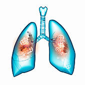 Smokers Lungs Clipart And Stock Illustrations  429 Smokers Lungs
