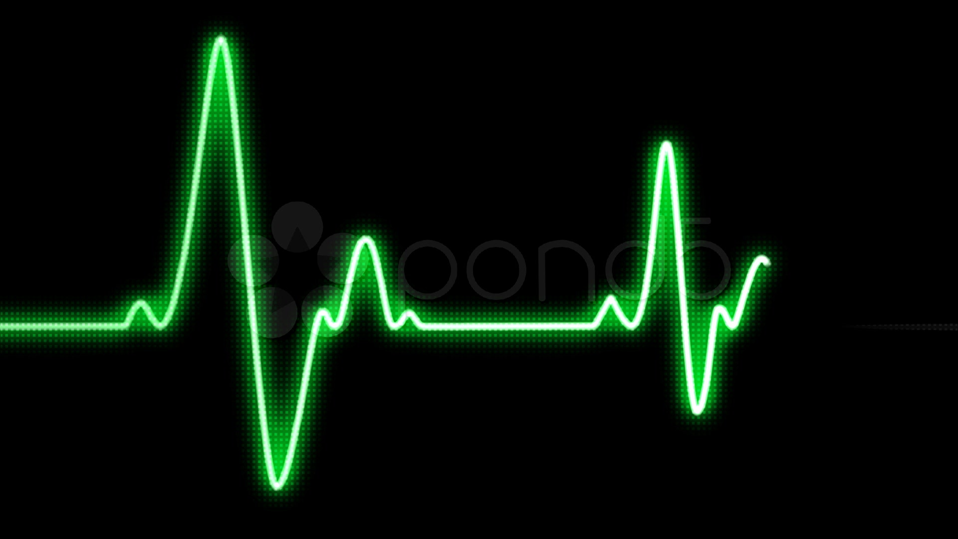 Heart Beat Monitor Clipart - Clipart Kid