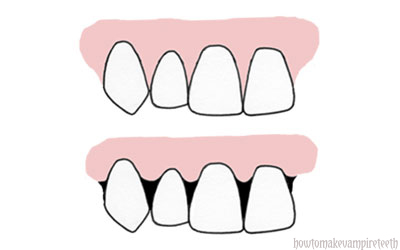 Pin Cow Teeth Diagram Pictures On Pinterest