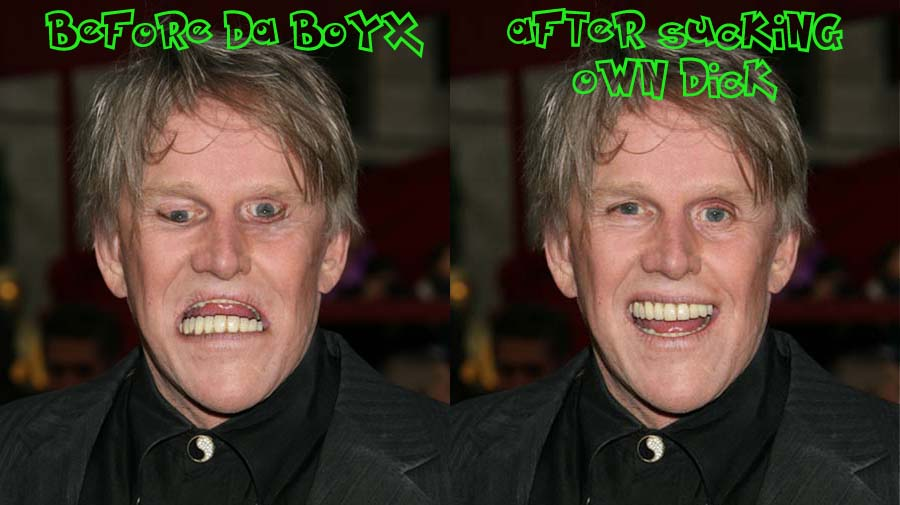 Gary Busey Before And After Gary Busey Before And After