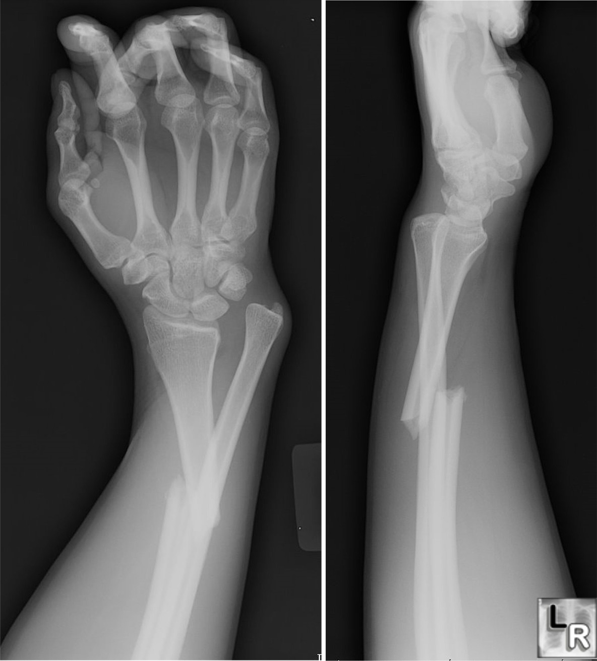 Galeazzi Fracture Consists Of A Fracture Of The Radius With Angulation
