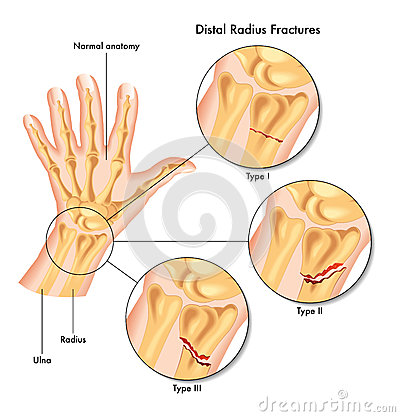Medical Illustration Of The Various Kinds Of Fracture Of The Distal