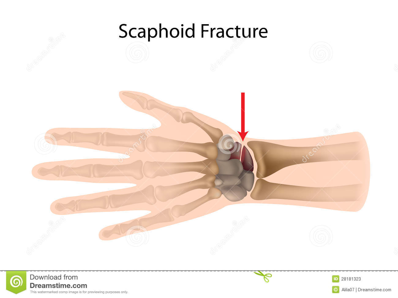 Most Common Fracture Of The Carpal Bones A Sport Injury Eps10